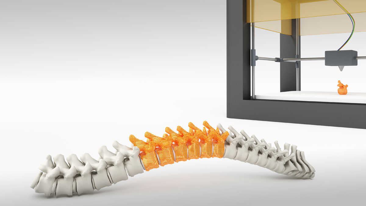3d printed spine