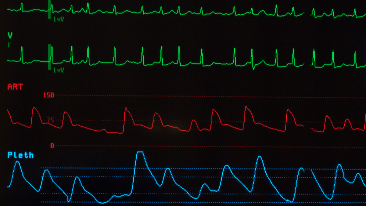Medical monitor with green lines of an abnormal ECG showing atrial fibrillation, a red line for the arterial blood pressure and a blue line for the oxygen saturation against a black background. - Image