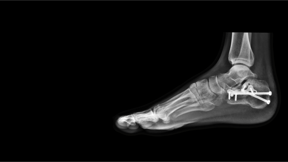 Film-ankle-xray
