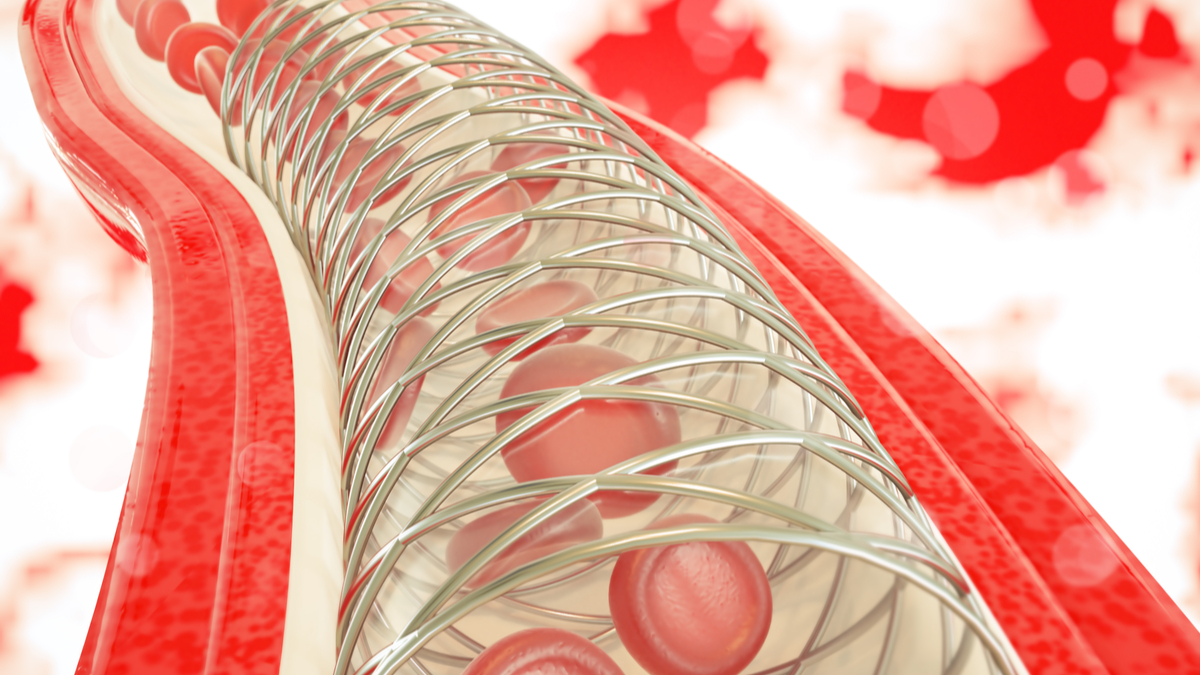 Angioplasty with stent placement- 3D rendering - Illustration