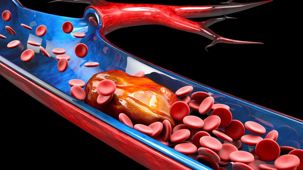 VIVA 2019: Penumbra's Indigo Effectively Treats Pulmonary Embolism Pivotal Trial