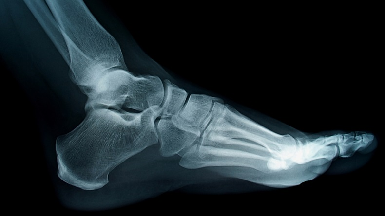 Foot and ankle xray