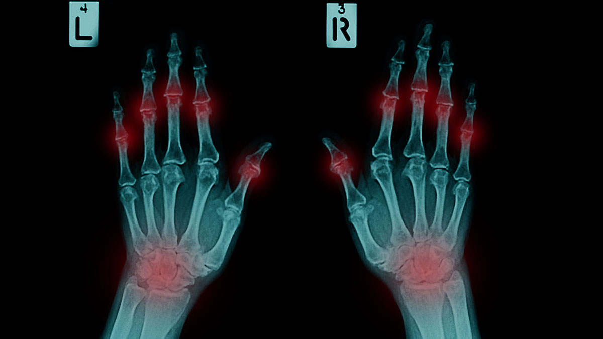 film x-ray both human's hands and arthritis at multiple joint (Gout,Rheumatoid)