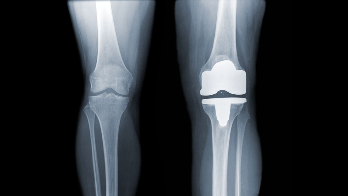 knee and knee with total replacement x-ray image ob black background - Image